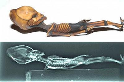 Mumi Alien Dari Gurun Atacama Ini Ternyata Manusia Mungil Yang Bermutasi