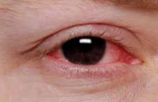 Mata Memerah dan Gatal, Hal ini Bisa Sebabkan Konjungtivitis
