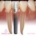 Implanturi dentare sau punți dentare?