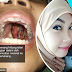 'Doktor kata hayat isteri saya tinggal dalam 3-4 minggu sahaja' - Suami rayu bantuan netizen