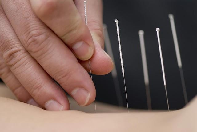 Acupuncture Treatment 2019