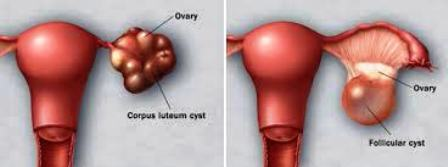 Sorts of Cysts