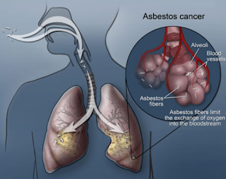 About Mesothelioma Caused By Exposure To Asbestos.
