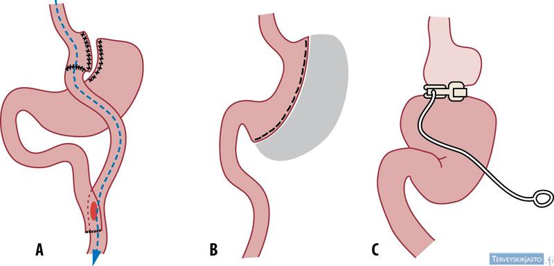 Laihdutusleikkaus