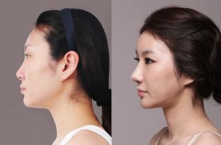 sebelum dan sesudah operasi plastik hidung Korea-3