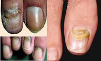 VEJA TAMBEM- Como acabar com a Micose nas unhas