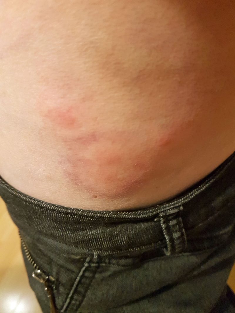 © Mein Waldgarten: So sieht ein Kriebelmückenstich aus!