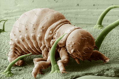 7 Monster Dilihat Mikroskop Elektron yang Bikin Kamu Merinding