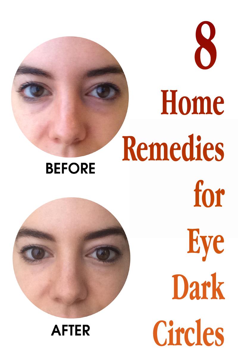 8 Home Remedies for Eye Dark Circles