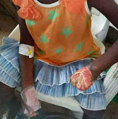 See photo of the lady who burnt little girl