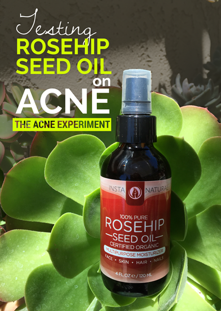 Testing Rosehip Seed Oil on Acne :: Crappy Candle