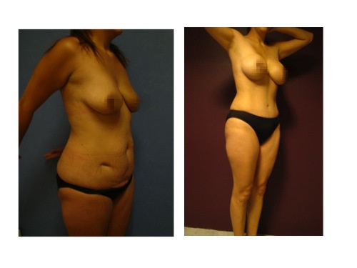 antes y despues de una abdominoplastia con implantes de senos en Salutaris Guadalajara
