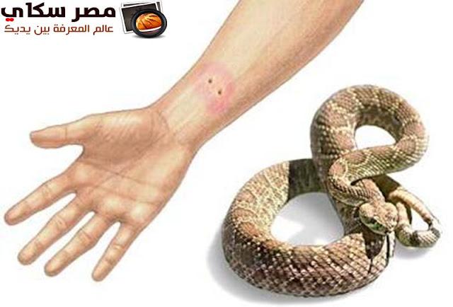 مم يتكون سم الثعابين وماهو خطورته Snake venom