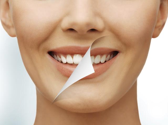 Obat Sakit Gigi Dengan Bawang Putih