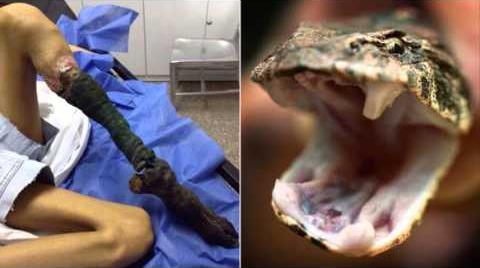 World's Deadliest Snake Bites; Lancehead Viper vs Teen ...