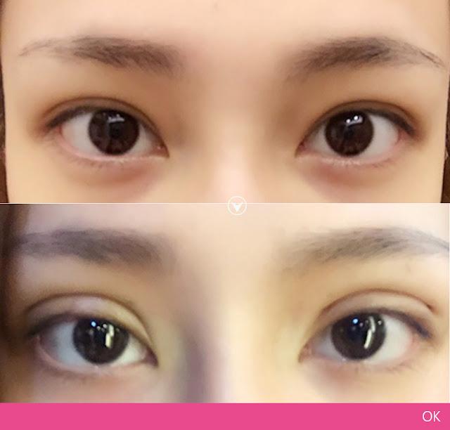 彤顏診所-雙眼皮-訂書針雙眼皮-縫雙眼皮-電眼-桃園雙眼皮推薦-中壢雙眼皮推薦-雙眼皮手術費用-寬摺痕雙眼皮
