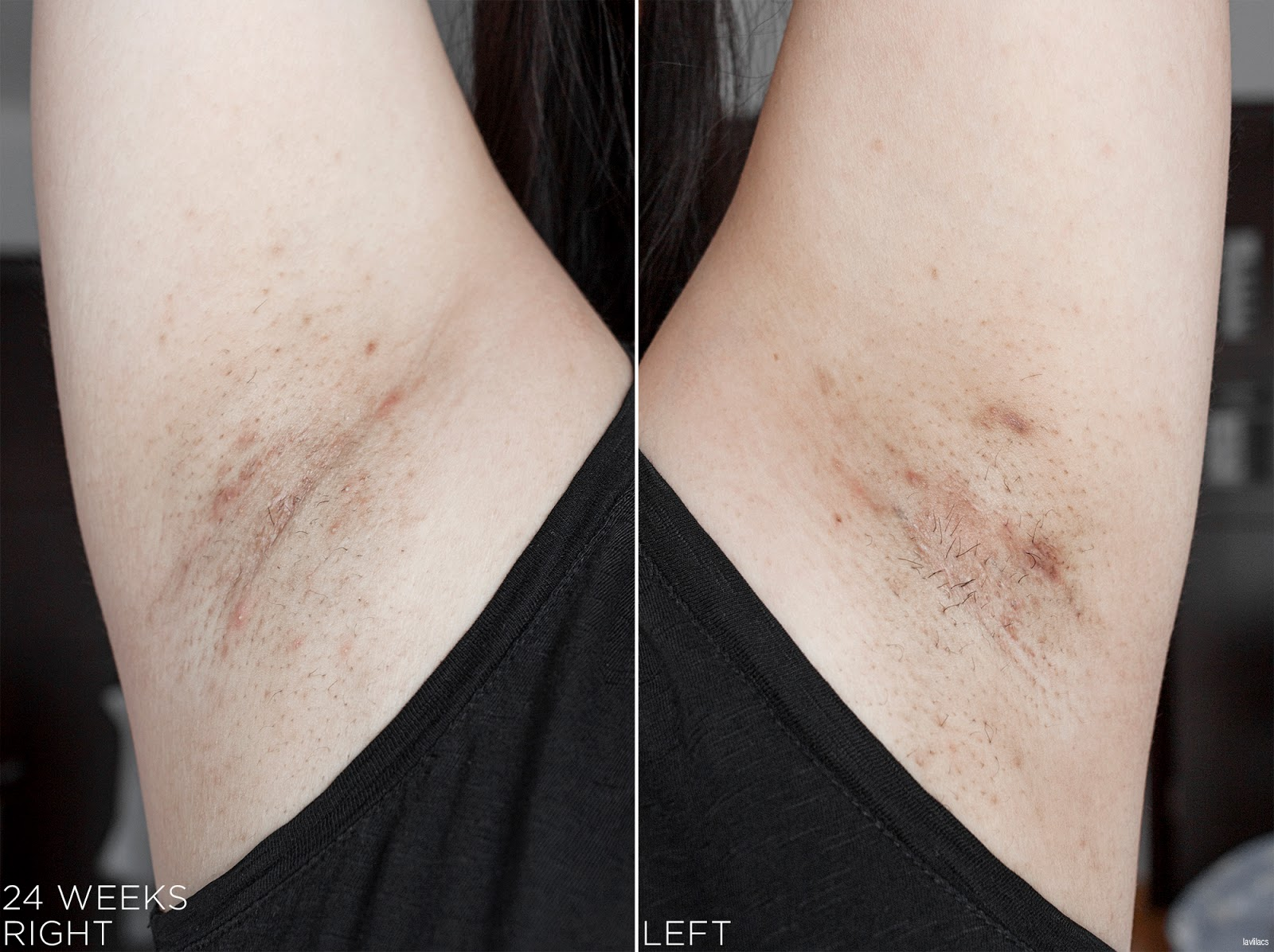 tria Hair Removal Laser Armpits Hair 24 Weeks