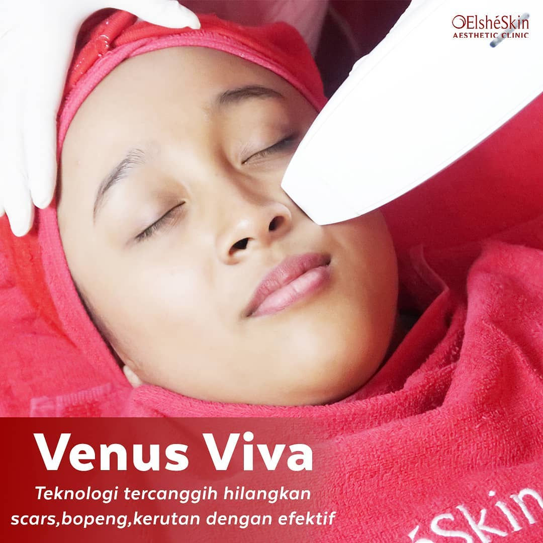 Venus Viva Treatment