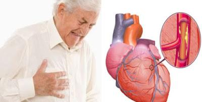 Cara Turunkan Kolesterol dan Cegah Penyakit Jantung Dengan Alpukat