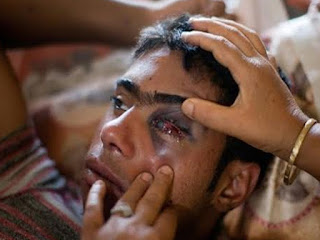 #IndianOccupiedKashmir  -  60% pellet victims suffer various degree blindness in IOK: study