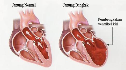 obat tradisional herbal alami jantung untuk bengkak, kumpulan obat herbal jantung bengkak,obat herbal untuk mengobati jantung bengkak, artikel obat untuk jantung bengkak,obat jantung herbal termutakhir dan terampuh,informasi jantung bengkak,tanaman obat jantung,cara mengobati jantung bengkak,obat jantung bengkak paling ampuh,apa jantung bengkak,penyebab jantung bengkak,gejala jantung bengkak,pengobatan jantung bengkak