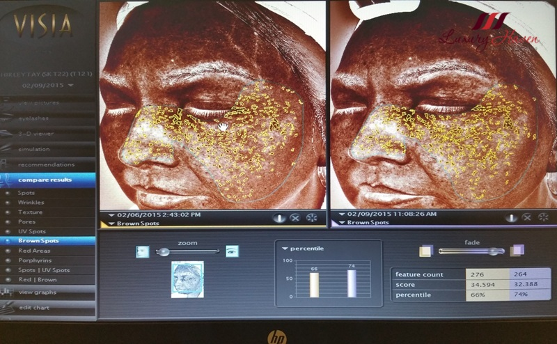 eha clinic visia skin analysis imaging system pigmentation