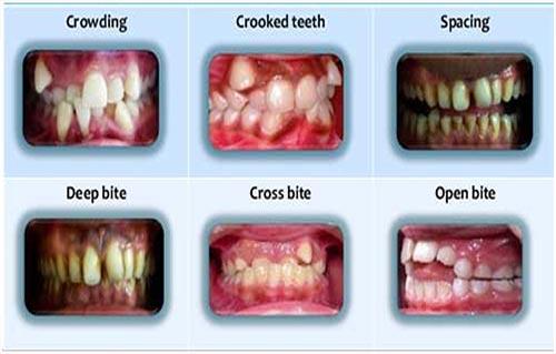Kelainan Bentuk dan Warna Gigi