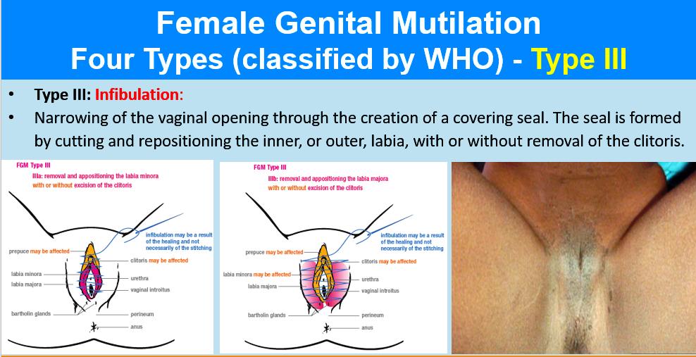 Page sexypics female genital fetish
