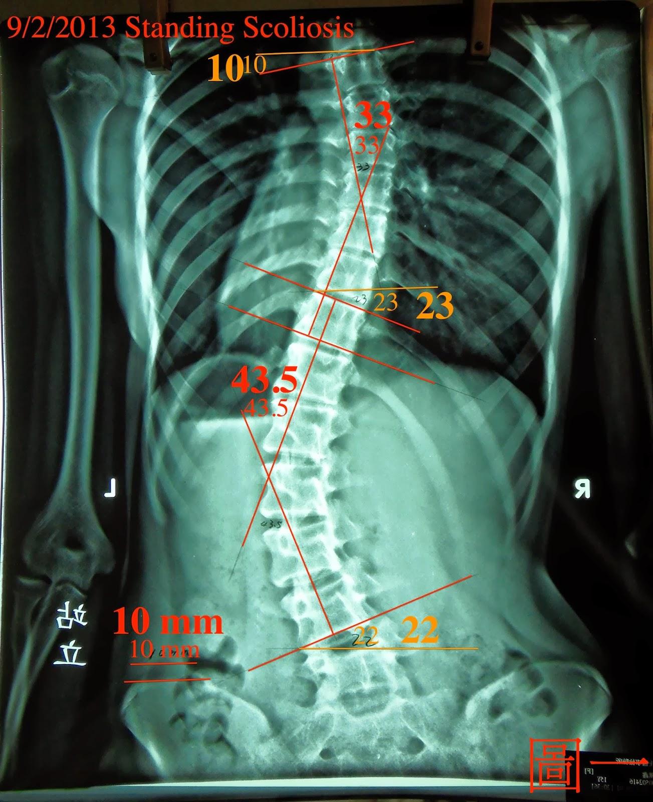脊椎側彎個案報告五-9次43.5度~32度後續追蹤一(五個月19度) - 閻曉華脊骨神經醫學網