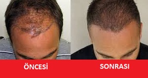 saç ekiminden önce ve sonra fotoğraflar