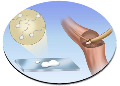 vasectomy revearsal effects