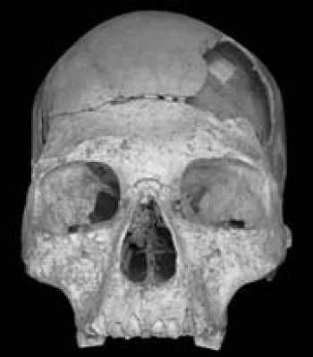 Un cerveau plus développé grâce aux croisements entre Homme Moderne et Néanderthalien ?