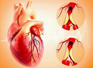 obat herbal jantung koroner akut icp capsule