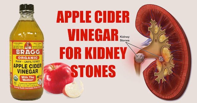 4 Effective Ways to Use Apple Cider Vinegar On Dissolving Your Kidney Stone