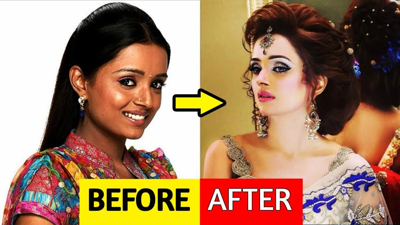 10 celebs you underwent plastic surgery to improve their looks