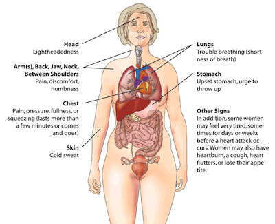 heart attack signs women