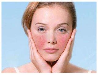 Irritated Sensitive Skin