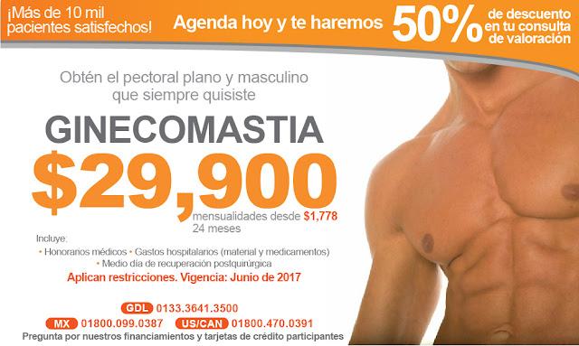 ginecomastia pechos de hombre pectorales implates cirugia estetica en hombres guadalajara precio costo