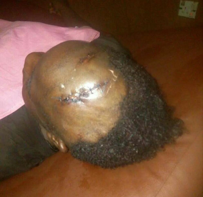 GRAPHIC IMAGES: University student severely stabs her friend '5' times in the head over an argument