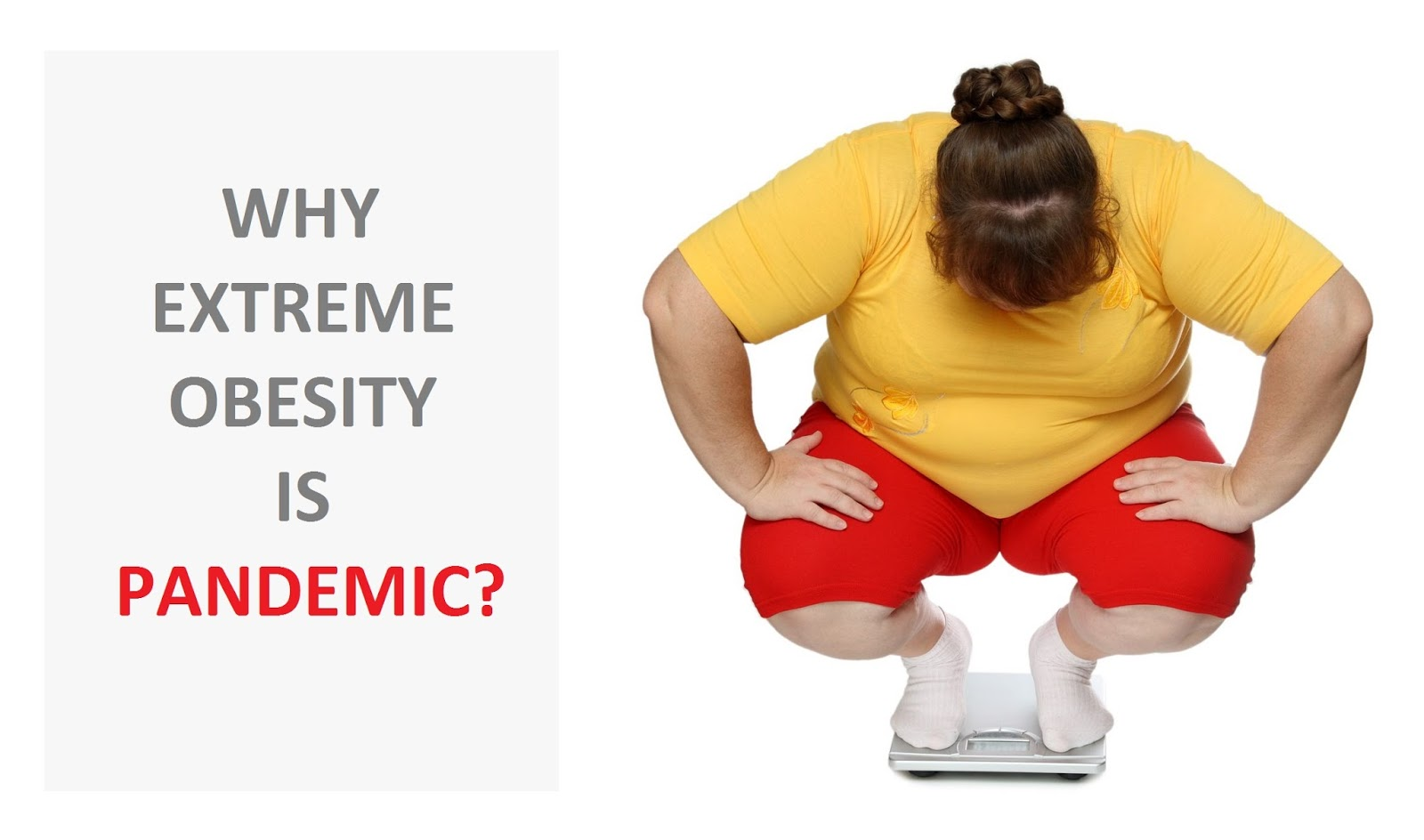 Why extreme obesity is pandemic?