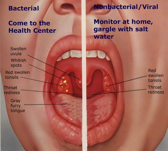 Tonsil Cancer Staging