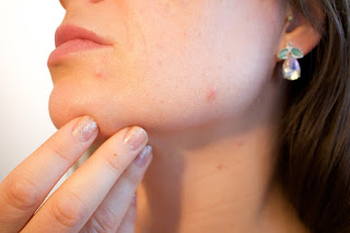 Treatment of Acne with natural remedies.