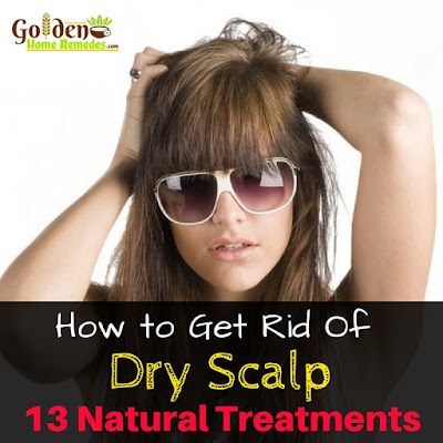 How To Get Rid Of Dry Scalp, How To Get Rid Of Scalp Dryness, Home Remedies For Dry Scalp, Dry Scalp Treatment, Dry Scalp Remedies, Dandruff Treatment, Dry Scalp, How to Get Rid Of Dandruff