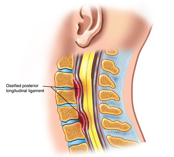 Ossification of the Posterior Longitudinal Ligament