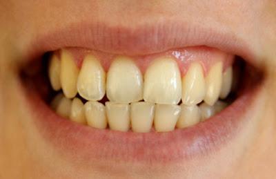 Gigi Kamu Kuning Kenali Penyebab Gigi Kuning Cintai Kesehatan Kita
