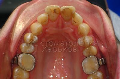 Ортодонтические коронки одеты на зубы после их лечения