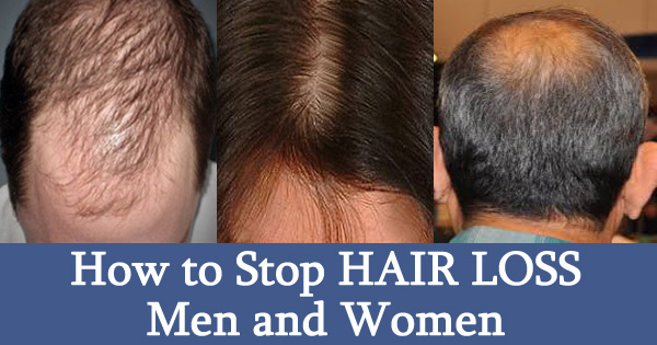 How to Stop HAIR LOSS Men and Women