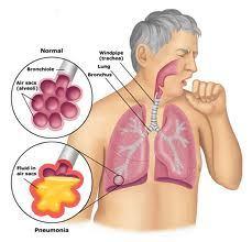 Obat Herbal Tbc Akut