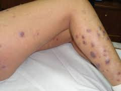 Muncul gatal pada kulit kaki seperti eksim