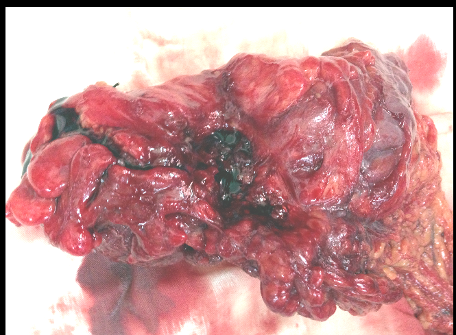 colon-tumors-and-facial-flushing